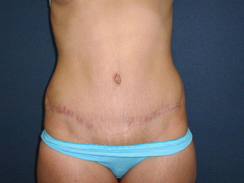 foto de abdominoplastia