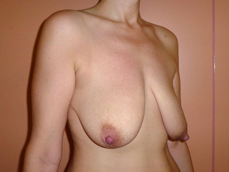 operación de mastopexia