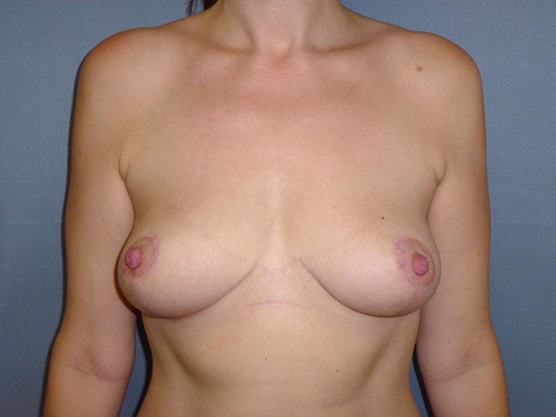 remodelación mamaria