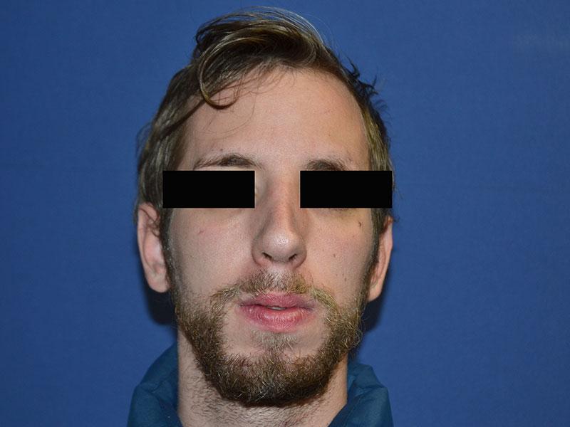 cirugía para tu nariz sevilla