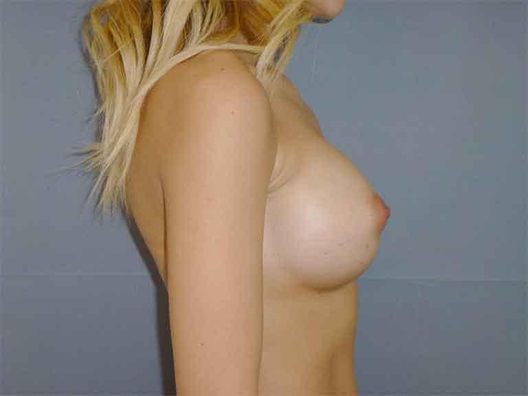 cirugía mamaria de aumento