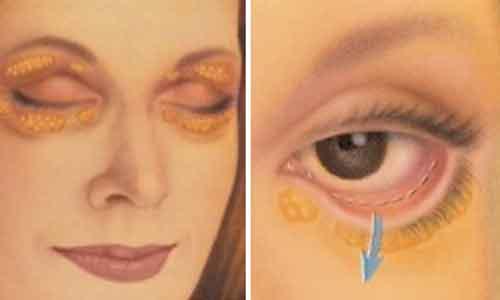 tratamiento efectivo ojeras