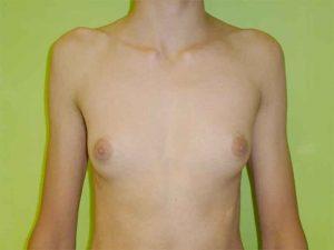 operación masculina ginecomastia