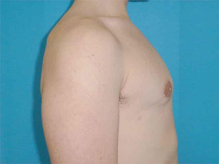 ginecomastia efectiva y segura