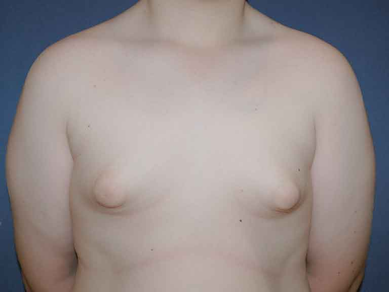 resultados hombre ginecomastia