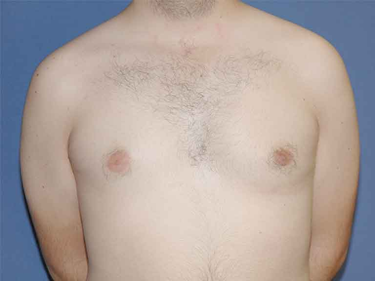 ginecomastia efectiva pechos