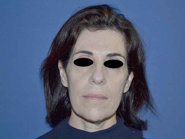 tratamientos faciales en sevilla