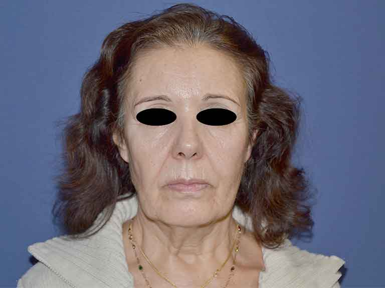 tratamiento de lifting facial