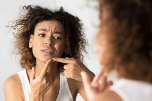 tratamiento laser acne