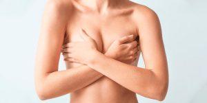 Tipos de mastopexia tratamiento efectivo para tu cirugía de pecho