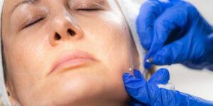 tratamiento facial mesoterapia