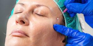 Mesoterapia en sevilla